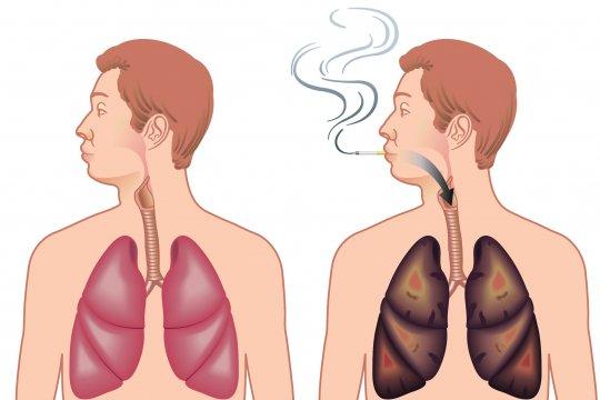 Longen stoppen met roken